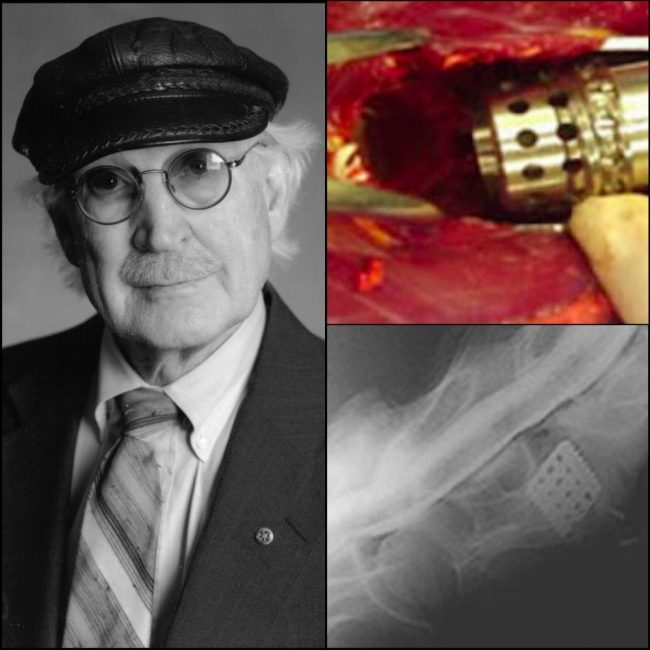 Inventor Dr. George Bagby and his basket being inserted and X-rayed in Seattle Slew